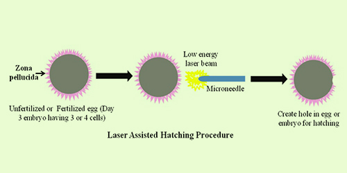assisted-laser-hatching