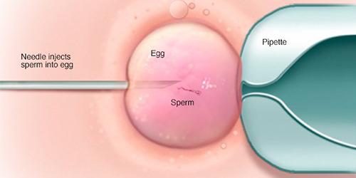 intracytoplasmic-sperm-injection