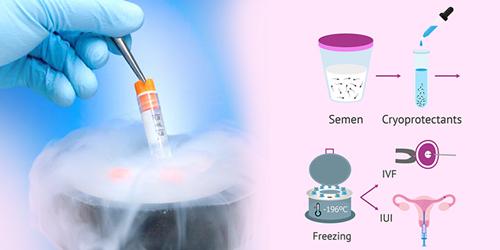 semen-cryopreservation